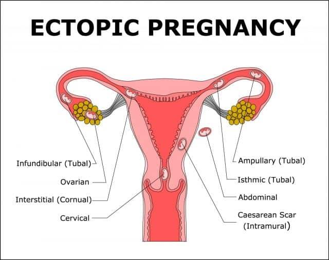 Symptomen Buitenbaarmoederlijke Zwangerschap Herkennen Of Ik Dat