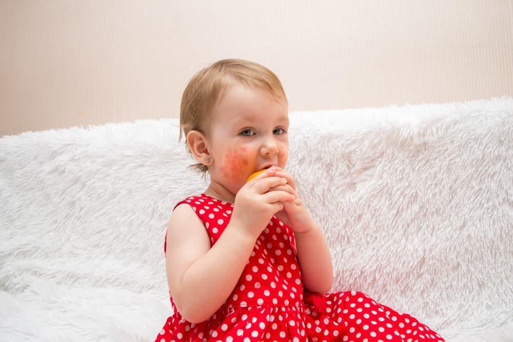 Koemelkallergie baby; van checklist waar melk in zit tot symptomen en ervaringen - Mamaliefde.nl