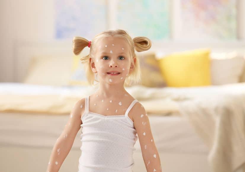 Waterpokken baby & kind; verloop, wanneer het ergst en hoe behandelen en wat als de volwassene zwanger is - Mamaliefde.nl