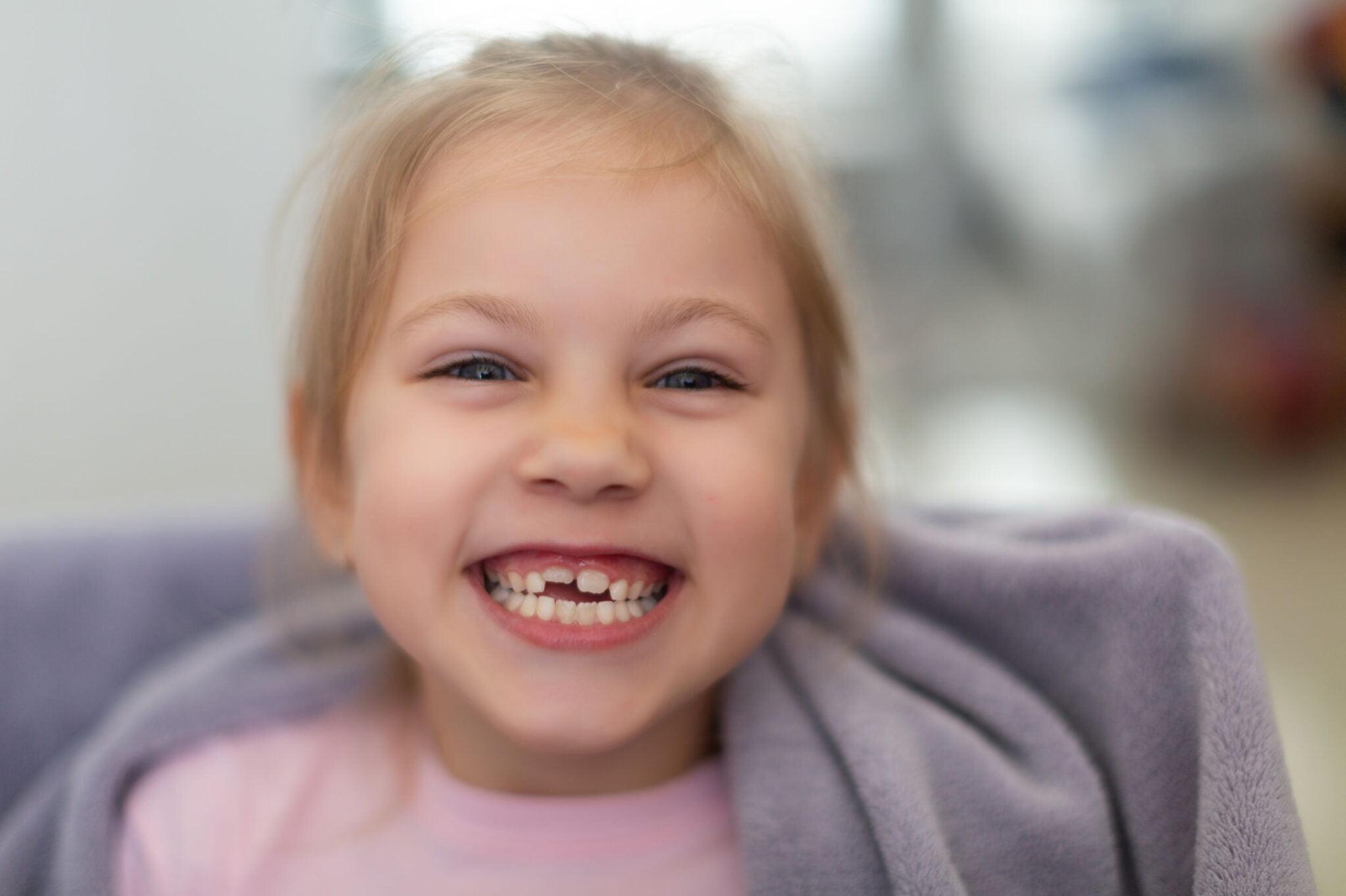 Tanden wisselen; wanneer melktanden, hoektanden en kiezen, pijn of bezoek van tandenfee? - Mamaliefde.nl
