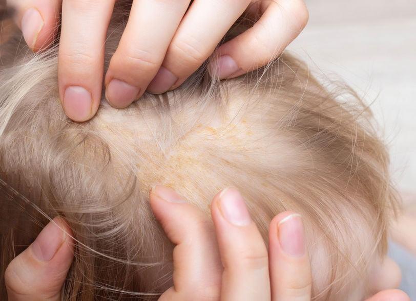 Berg schilfertjes bij baby (of volwassene); oorzaak, zalf en tips voorkomen of verwijderen - Mamaliefde.nl