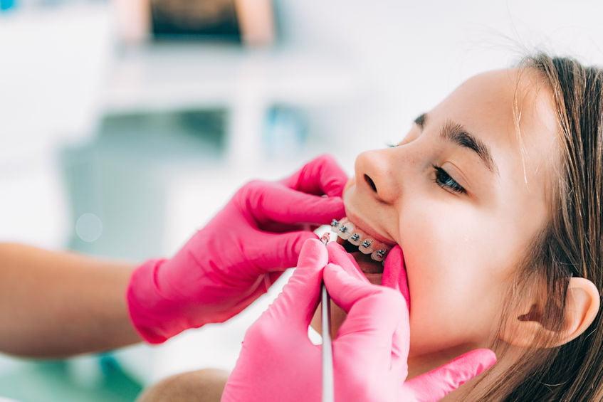 Beugels voor kinderen; van kosten, verwijzing orthodontist tot overzicht soorten beugels.- Mamaliefde.nl